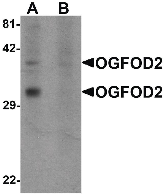 OGFOD2 Antibody (PA5-21102)