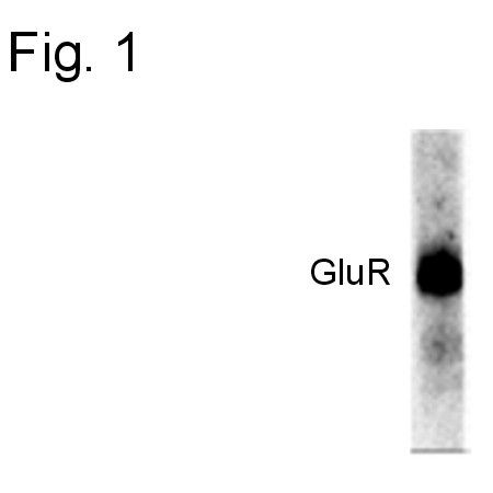 Phospho-GluR1 (Ser845) Antibody (OPA1-04118) in Western Blot