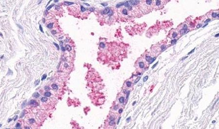 OR51E1 Antibody (PA5-34052)