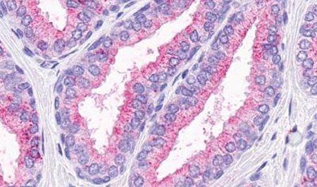 OR51E1 Antibody (PA5-34054) in Immunohistochemistry (Paraffin)