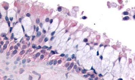 OR6K3 Antibody (PA5-34056) in Immunohistochemistry (Paraffin)
