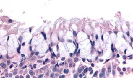 OR6K3 Antibody (PA5-34057)