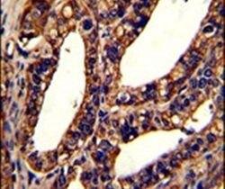 ORAI1 Antibody (PA5-26378)