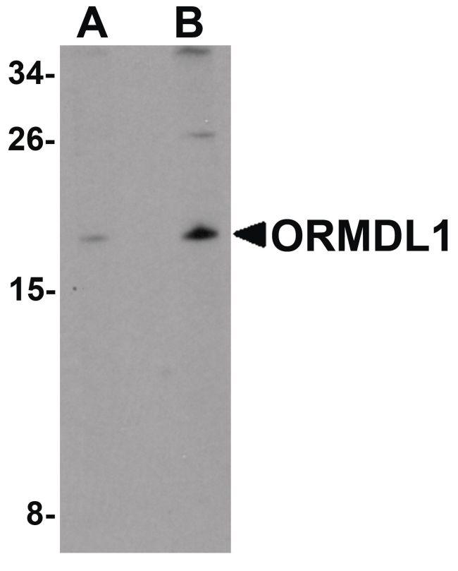 ORMDL1 Antibody (PA5-21146) in Western Blot