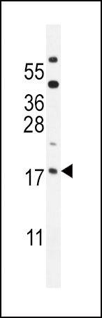 ORMDL3 Antibody (PA5-24232)