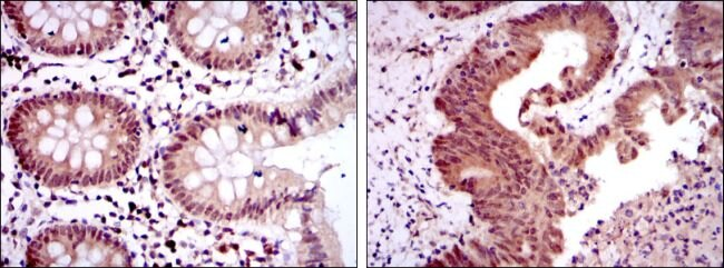 OTX2 Antibody (MA5-15855) in Immunohistochemistry