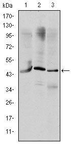 OTX2 Antibody (MA5-15855) in Western Blot