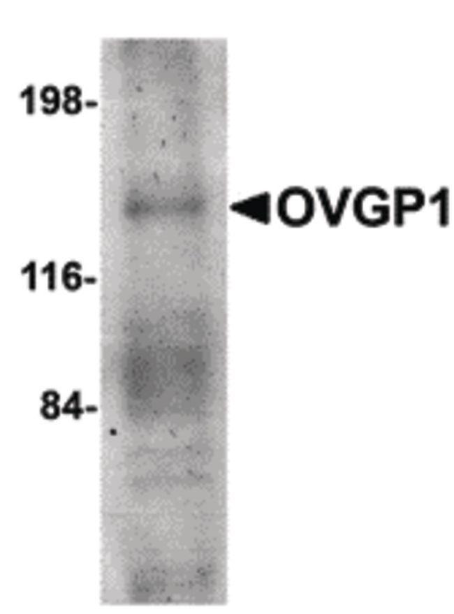 OVGP1 Antibody (PA5-20580) in Western Blot