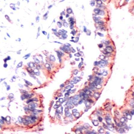 Occludin Antibody (PA5-32524) in Immunohistochemistry