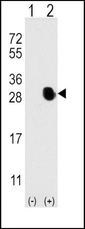 Osteocalcin Antibody (PA5-11849) in Western Blot