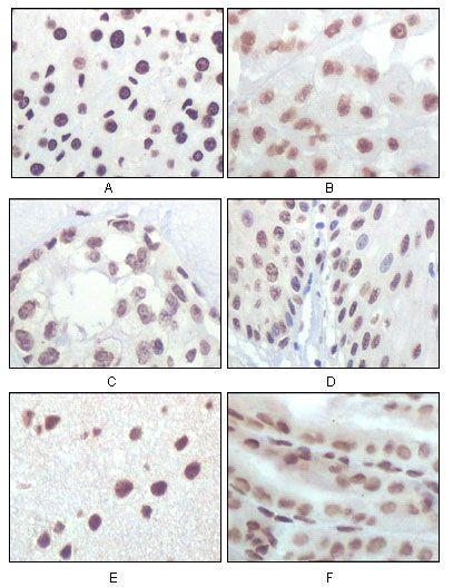 CDKN2A Antibody (MA5-17142)