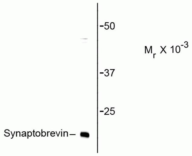VAMP1 Antibody (P21941)
