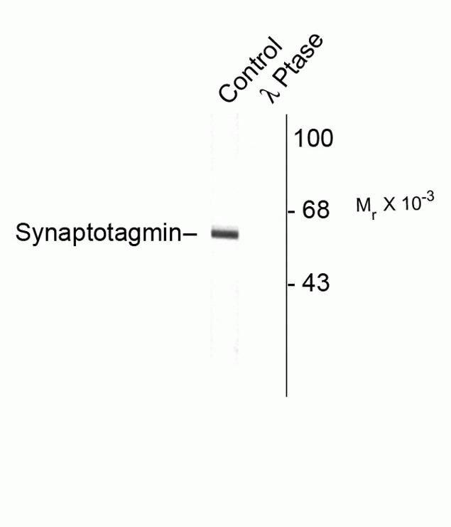 Phospho-Synaptotagmin 1 (Thr202) Antibody (P21956)