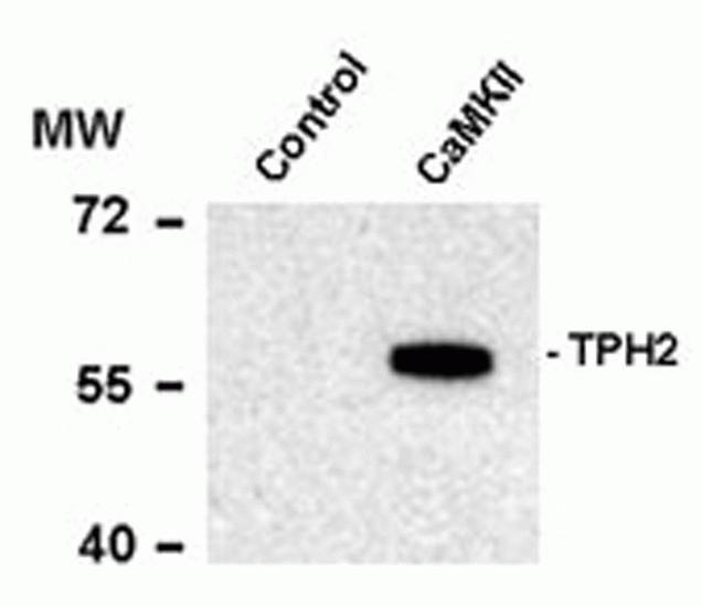 Phospho-TPH2 (Ser19) Antibody (P21961)