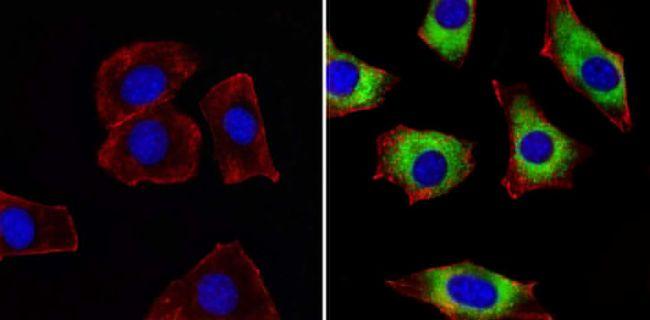 ERp72 Antibody (PA1-007) in Immunofluorescence