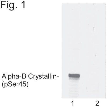 Phospho-CRYAB (Ser45) Antibody (PA1-011) in Western Blot