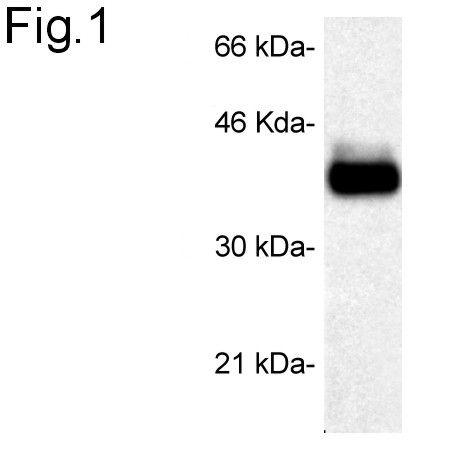 STUB1 Antibody (PA1-015) in Western Blot