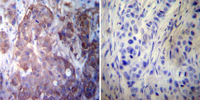 HSP27 Antibody (PA1-017) in Immunohistochemistry