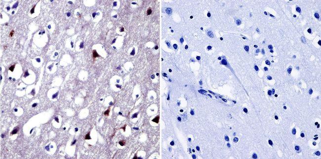 NFAT5 Antibody (PA1-023) in Immunohistochemistry