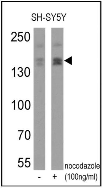 Phospho-nNOS (Ser1417) Antibody (PA1-032) in Western Blot