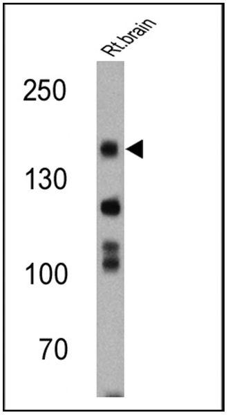 nNOS Antibody (PA1-033) in Western Blot