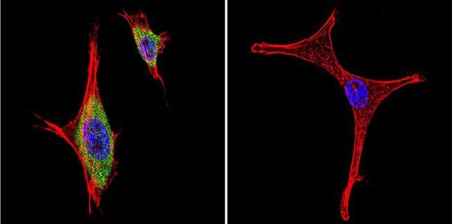 iNOS Antibody (PA1-036) in Immunofluorescence