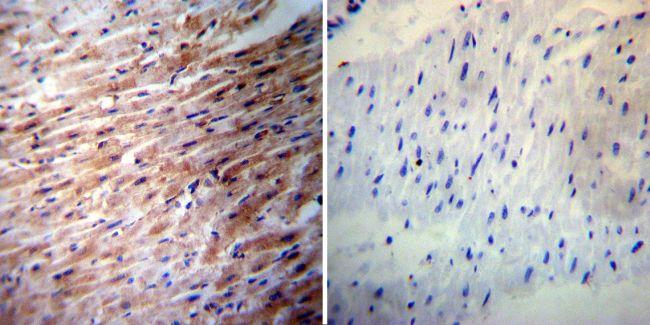 iNOS Antibody (PA1-036) in Immunohistochemistry
