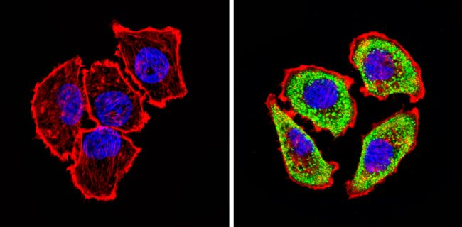 ADORA2A Antibody (PA1-042) in Immunofluorescence