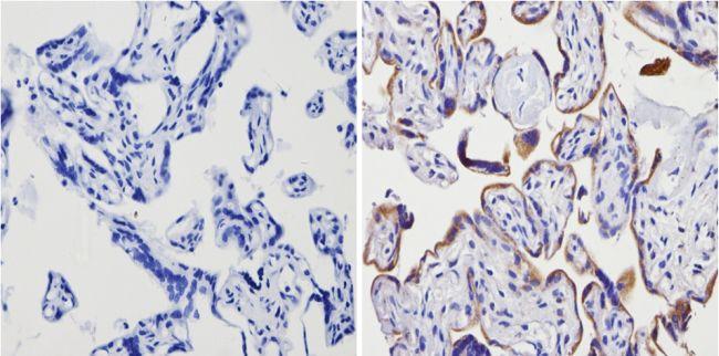 ADORA2A Antibody (PA1-042) in Immunohistochemistry (Paraffin)