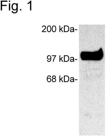 SAP102 Antibody (PA1-045) in Western Blot