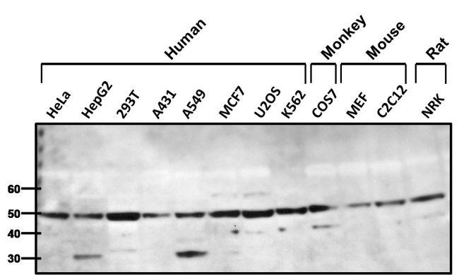 beta-1 Adrenergic Receptor Antibody (PA1-049) in Western Blot