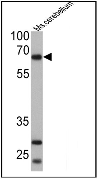 PCSK2 Antibody (PA1-058) in Western Blot