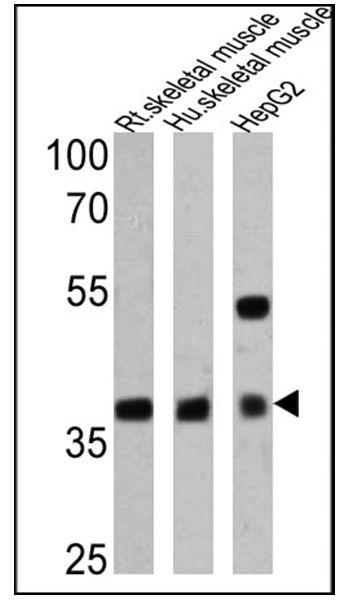 Adiponectin Receptor 1 Antibody (PA1-059)