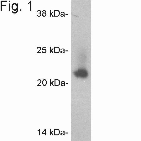 Caveolin 2 Antibody (PA1-065)