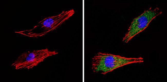 COPII Antibody (PA1-069A) in Immunofluorescence