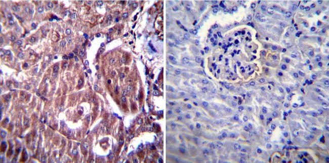 RAGE Antibody (PA1-075) in Immunohistochemistry