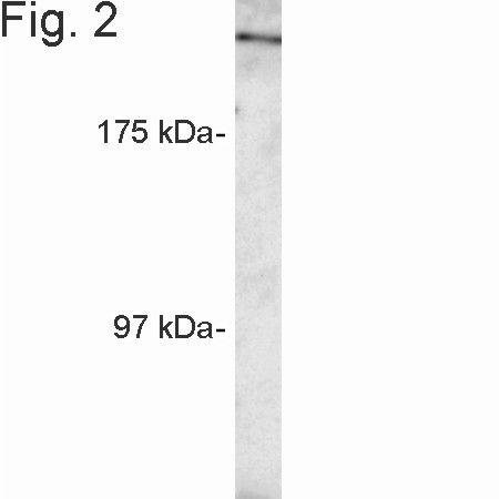 RANBP2 Antibody (PA1-082) in Western Blot
