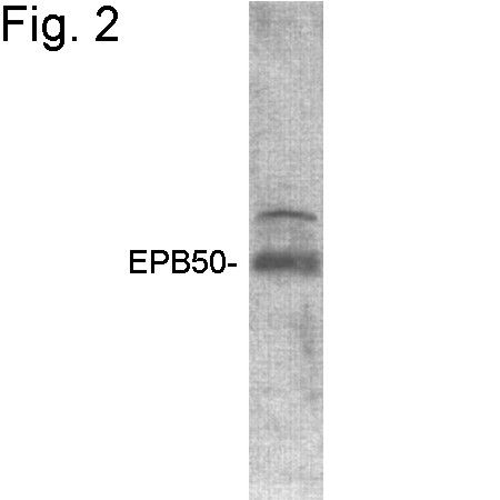 EBP50 Antibody (PA1-090) in Western Blot