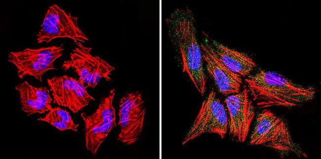 RAC1 Antibody (PA1-091) in Immunofluorescence