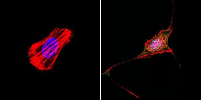 RAC1 Antibody (PA1-091X) in Immunofluorescence