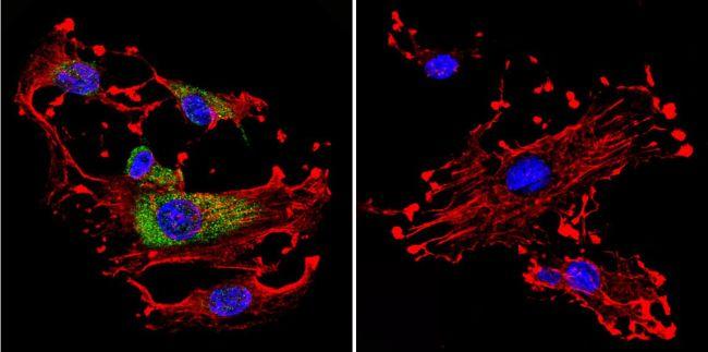 Cdc42 Antibody (PA1-092X) in Immunofluorescence