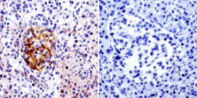 Cdc42 Antibody (PA1-092X) in Immunohistochemistry (Paraffin)