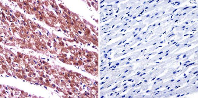 ARF6 Antibody (PA1-093) in Immunohistochemistry