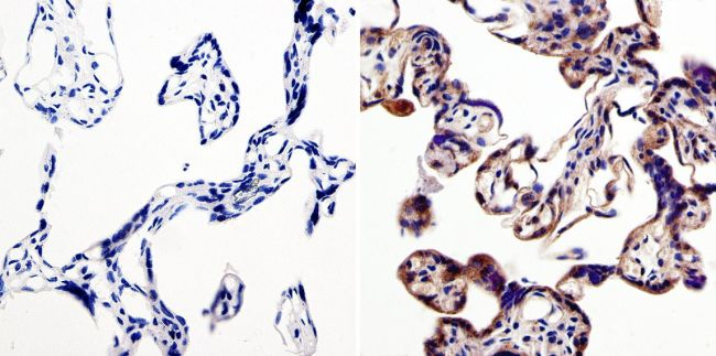 LIN28A Antibody (PA1-096X) in Immunohistochemistry (Paraffin)
