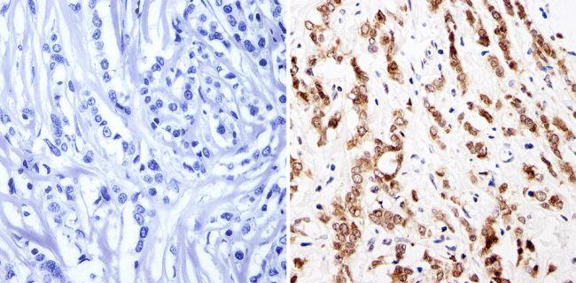 GATA1 Antibody (PA1-099) in Immunohistochemistry (Paraffin)