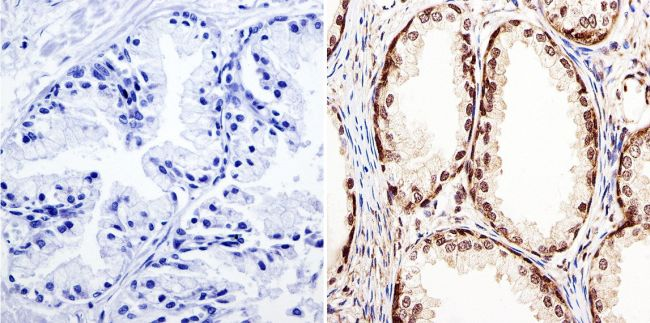 GATA2 Antibody (PA1-100) in Immunohistochemistry