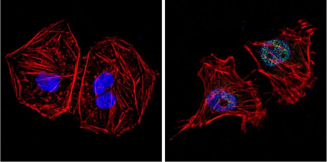 GATA4 Polyclonal Antibody