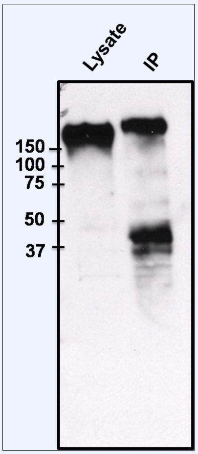 EGFR Antibody (PA1-1110) in Immunoprecipitation