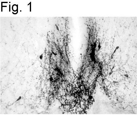 GnRH1 Antibody (PA1-121) in Immunohistochemistry