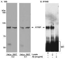 ATRIP Antibody (PA1-16582)